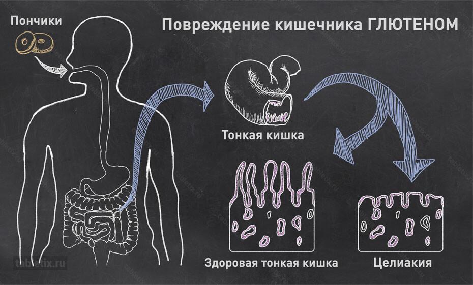 Повреждение ворсинок тонкой кишки глютеном - Целиакия