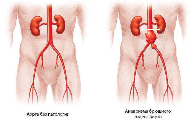 Аневризма аорты в брюшной полости