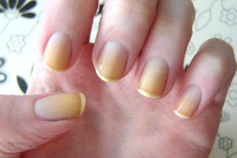 Желтеют ногти