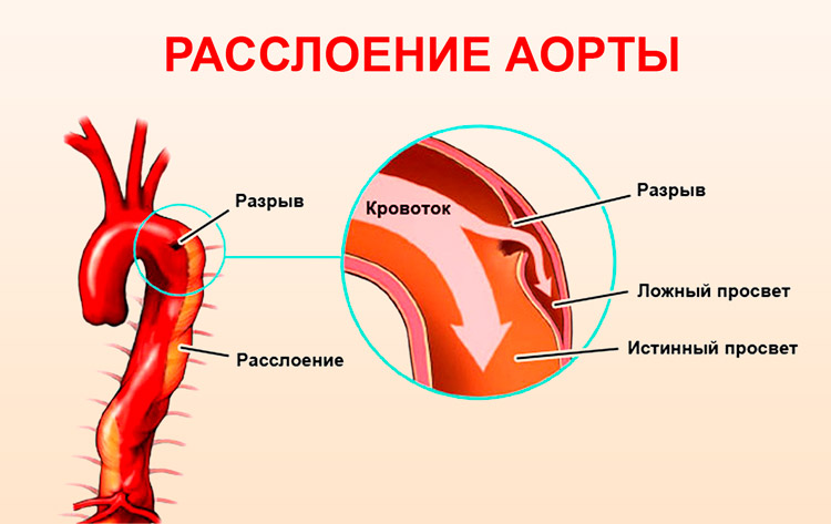 Расслаивающая аневризма аорты