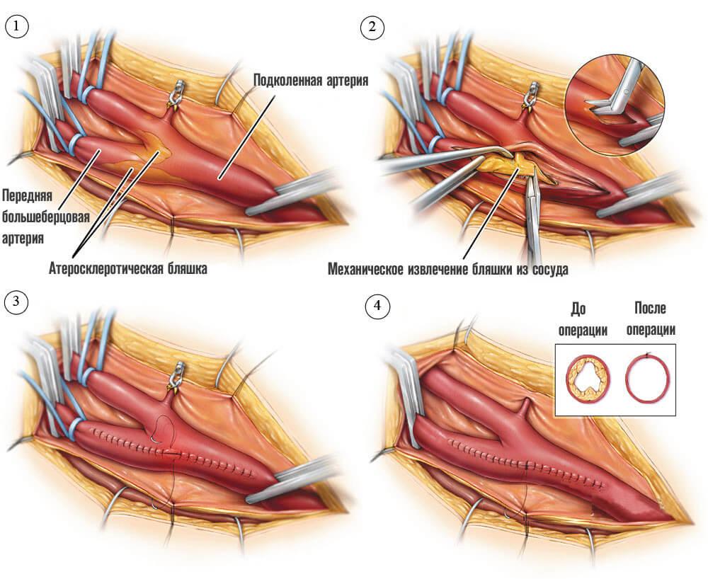 Хирургическое удаление сосудистой бляшки