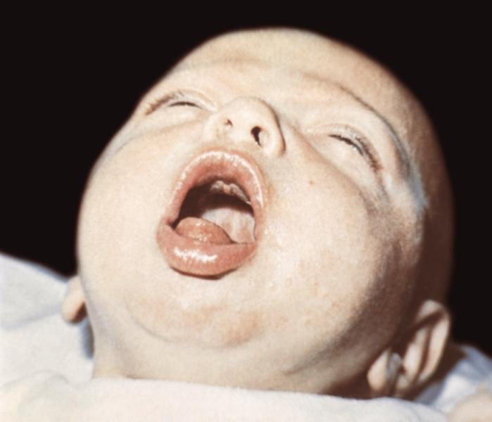 Приступ у грудного ребенка