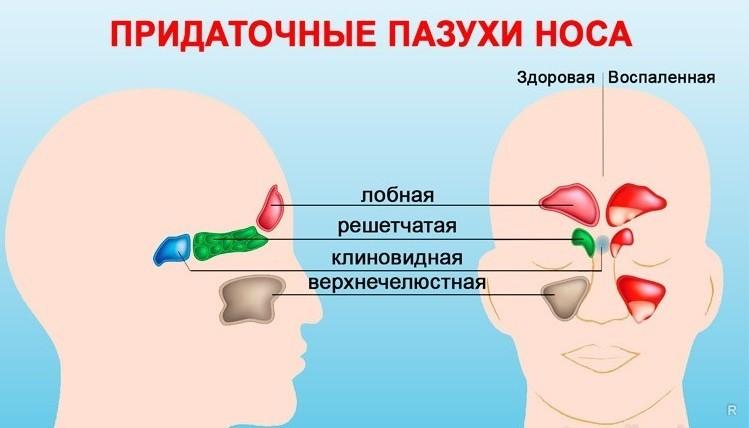 Придаточные пазухи носа