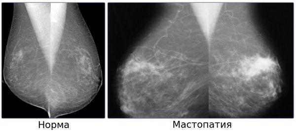 Маммография с ФКМ