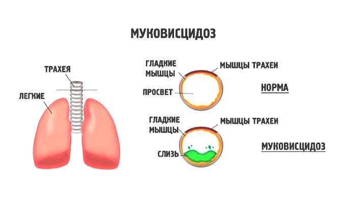 Легочная форма муковисцидоза