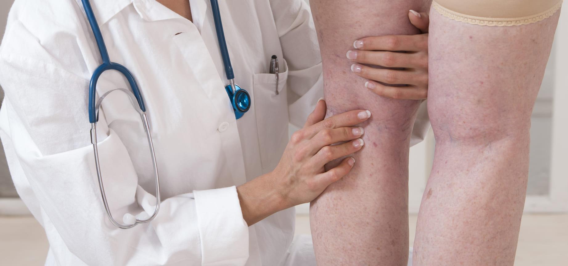 Хроническая артериальная недостаточность нижних конечностей