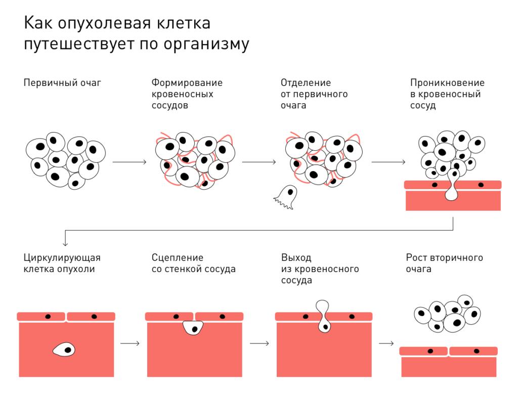 Процесс метастазирования