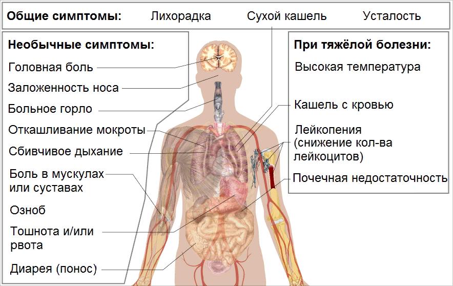 Симптомы коронавирусной инфекции