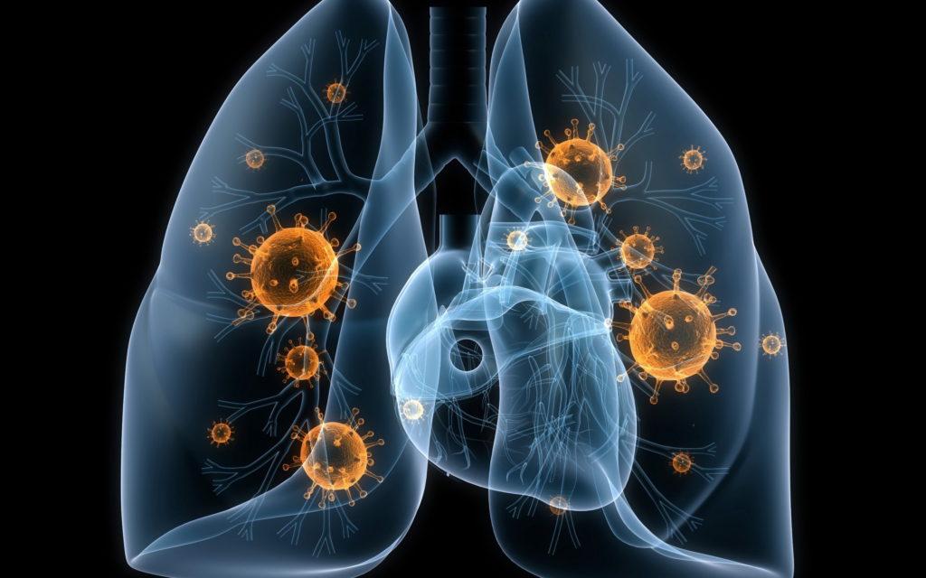 Вентилятор-ассоциированная пневмония