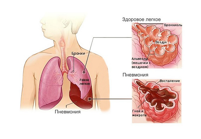 Заполненные гноем и мокротой легочные альвеолы припневмонии