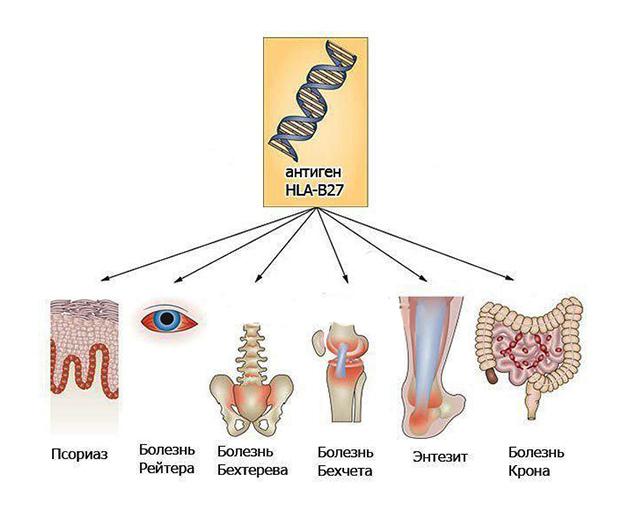 Влияние антигена HLA B27