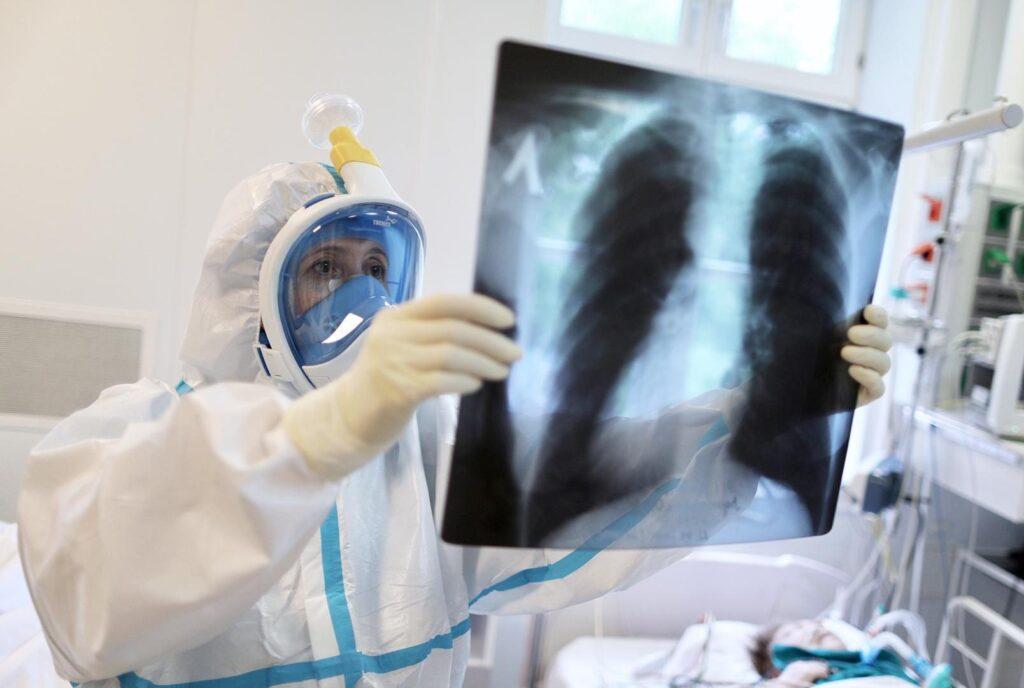 Коронавирусная пневмония без температуры