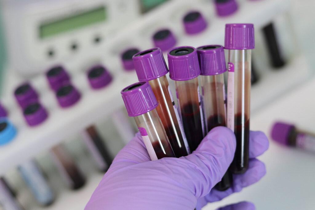 Тест на антитела (ИФА)