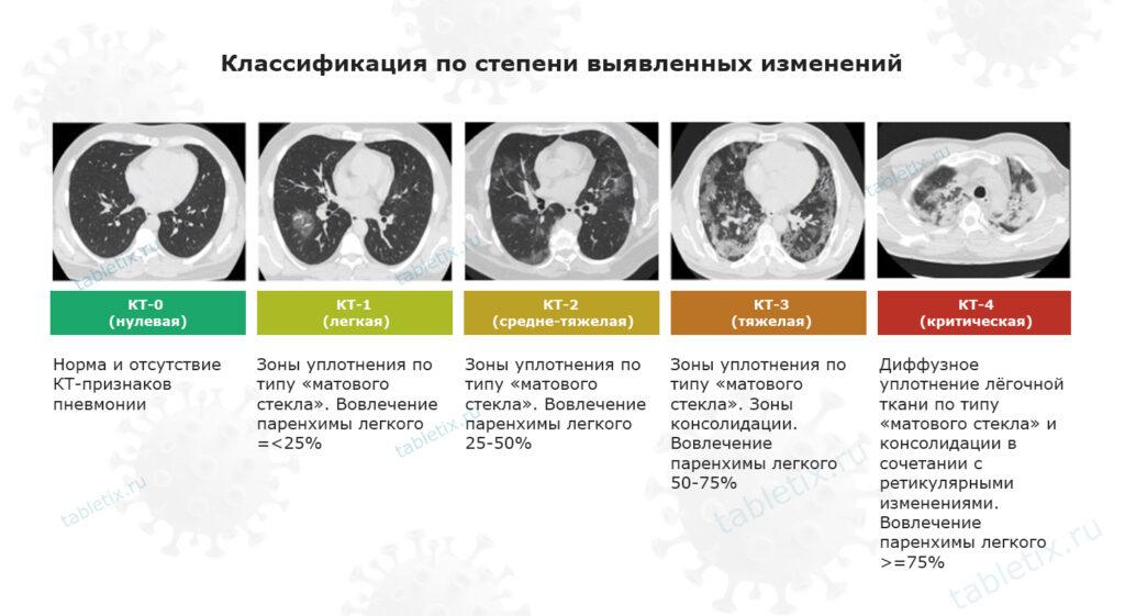 Классификация пневмонии по степени тяжести