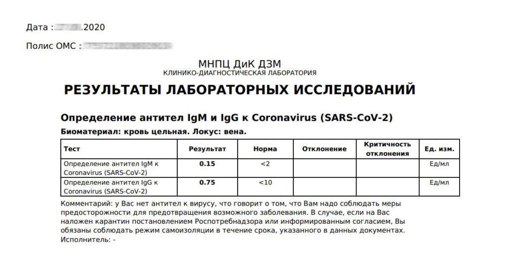 Результат отрицательного теста на антитела к коронавирусу