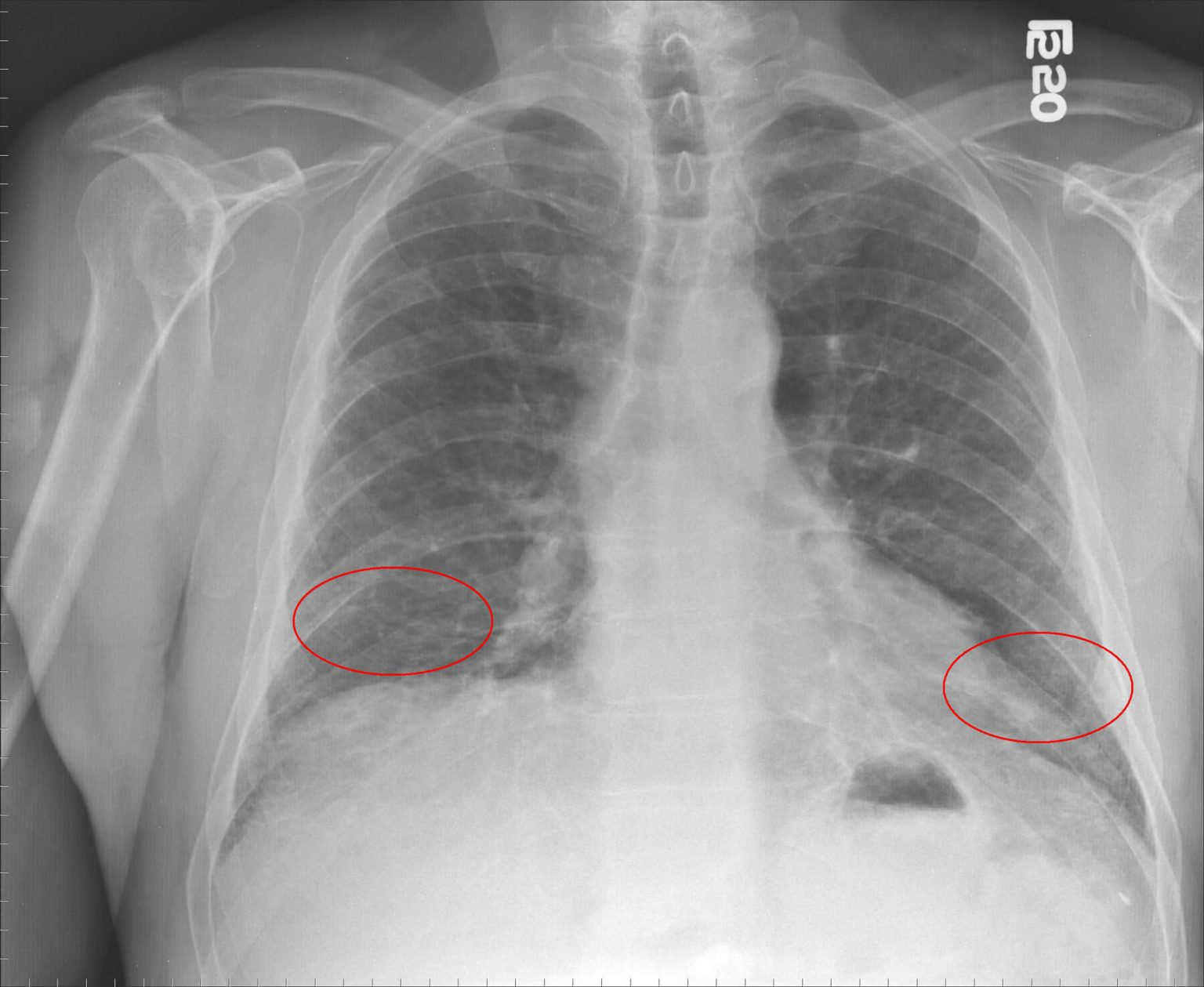 Коронавирусная пневмония