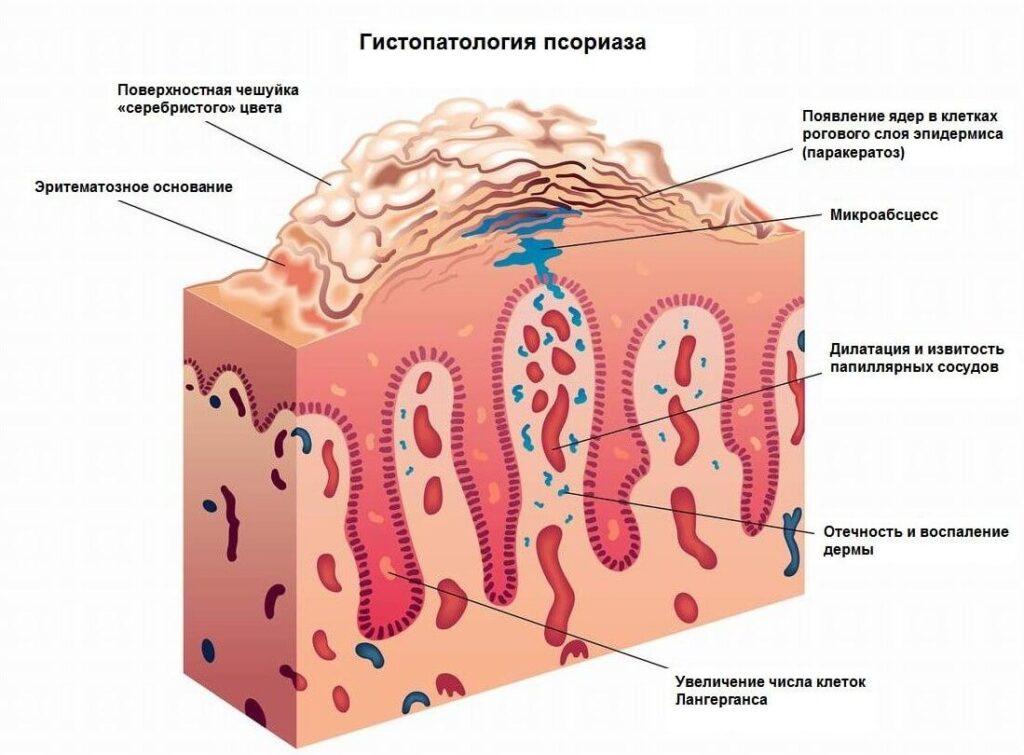Гистопатология псориаза